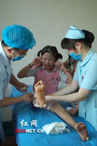 儿童 腿矫正器图片